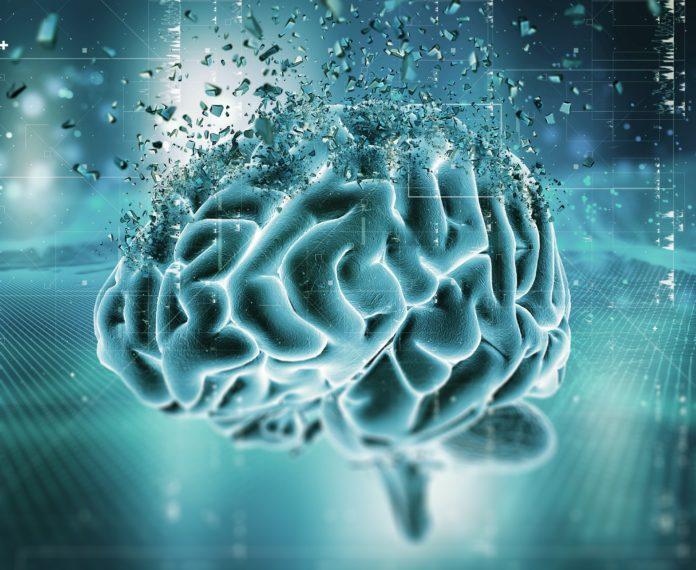 multipla skleroza, neuronet.rs, neurološka rezerva
